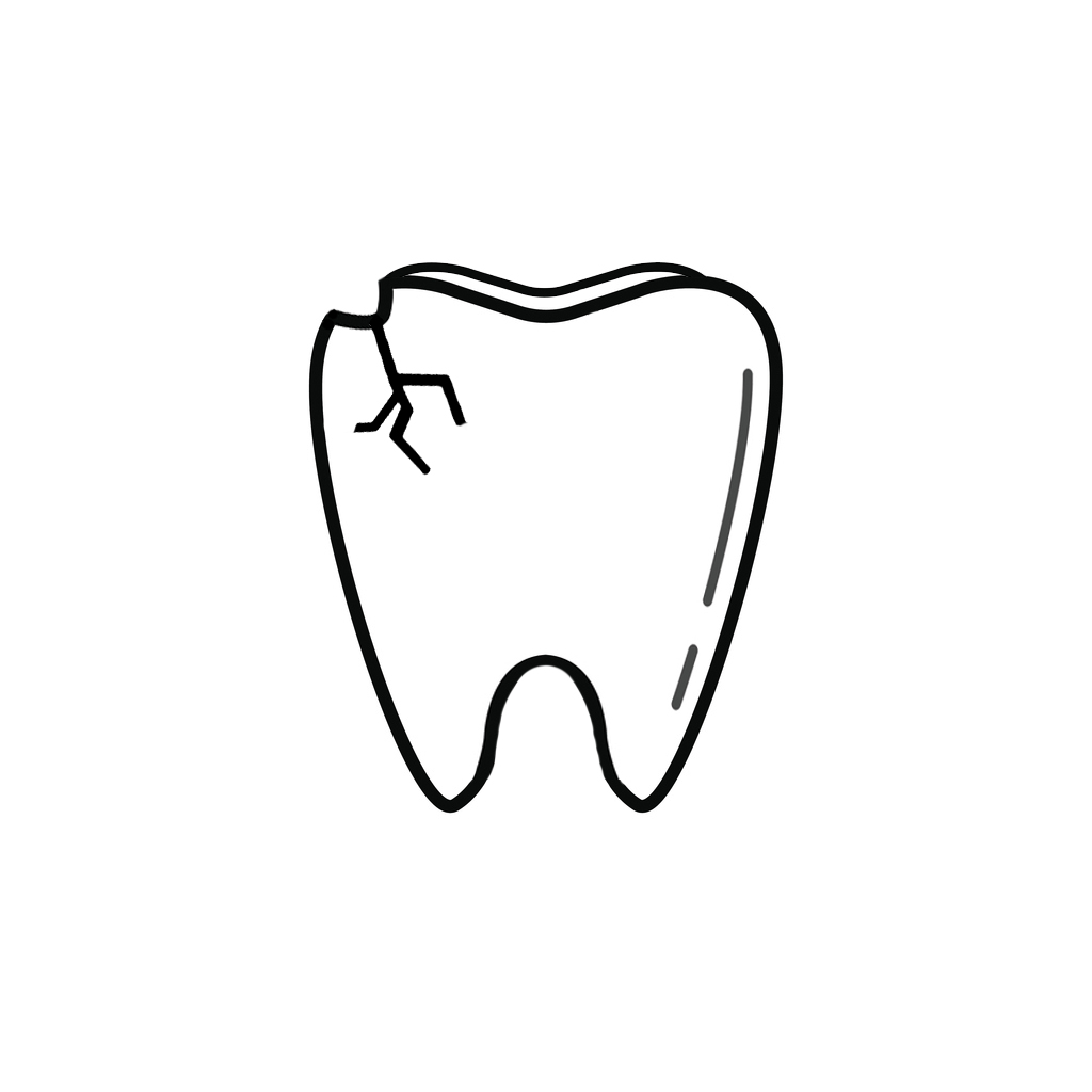 Primghar IA Dentist | I Chipped a Tooth! What Can I Do?